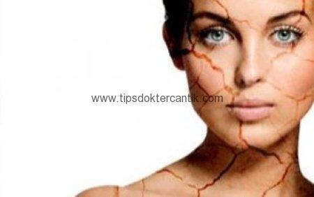 Cara Perawatan Kulit Wajah Yang Kering