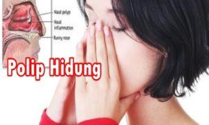 Cara Alami Mengobati Polip Hidung