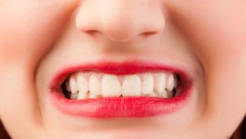 Cara Mudah Mengatasi Gigi Sensitif