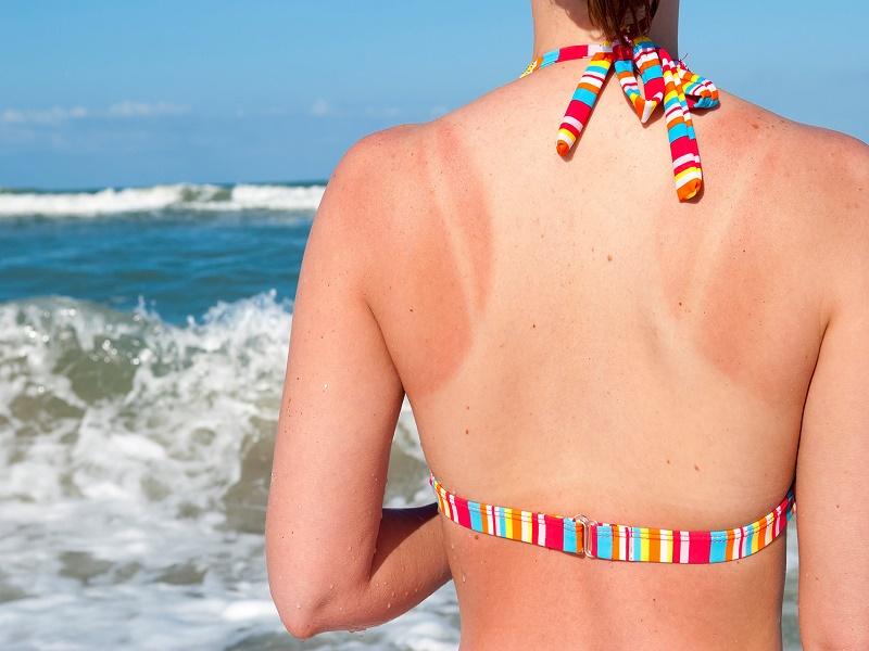 Menghilangkan Kulit Belang Akibat Sinar UV