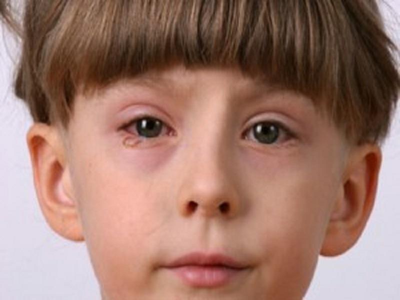 Cara Mengatasi Iritasi Mata Pada Anak