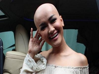 Artis Cantik Yang Berjuang Melawan Kanker Ganas 2