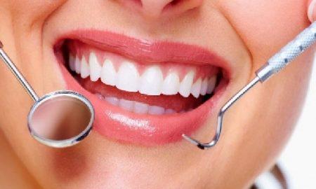 Cara Mudah Mencegah Munculnya Karang Gigi