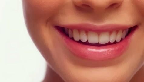 Cara Tepat Memutihkan Gigi Secara Alami Tips Dokter Cantik