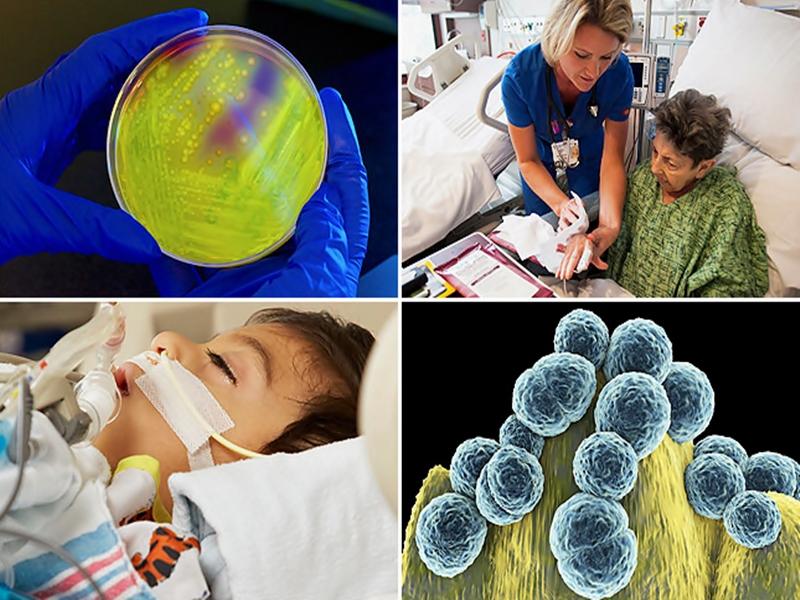 Fakta Seputar Infeksi Nosokomial.2