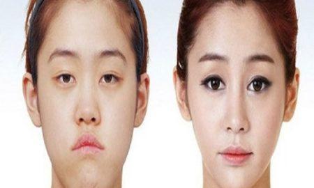 Kenapa Sih Orang Korea Selatan Gemar Melakukan Operasi Plastik