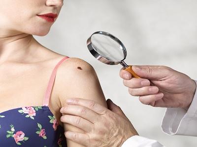 Tanda Kulit Yang Harus Segera Diperiksakan Ke Dokter
